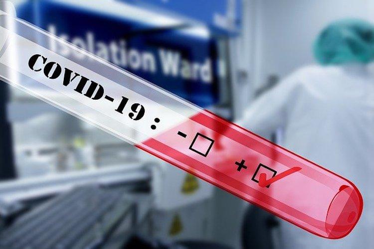 Two Arizona Labs Pair Up To Mass-Produce COVID-19 Testing Kits