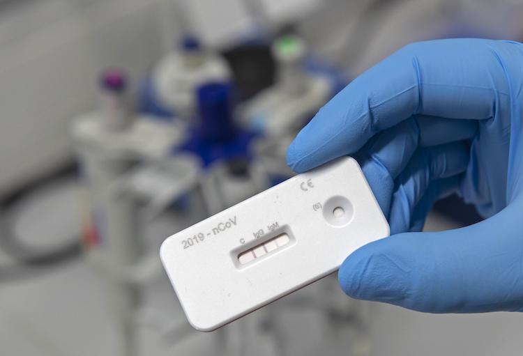 Should You Take A COVID-19 Antibody Test?