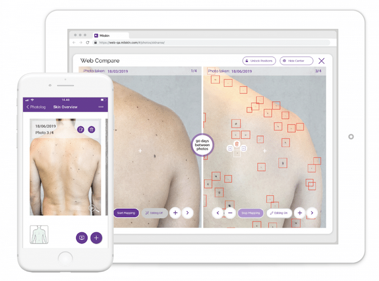 Miiskin App Uses Artificial Intelligence to Check for Skin Cancer